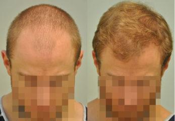 Hogyan végzik a FUE hajbeültetést?